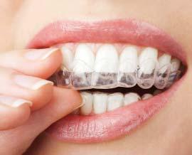 Approfondimenti ortodonzia