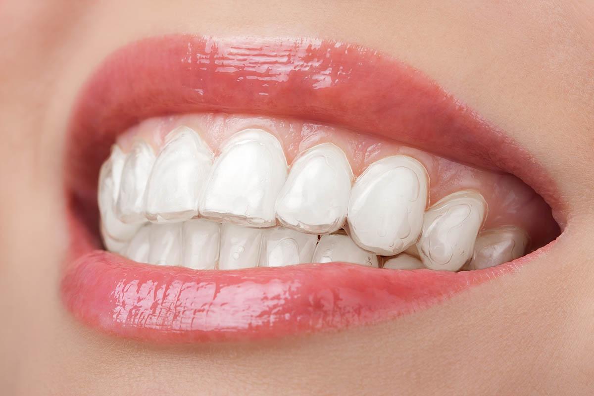 Estetica dentale e sbiancamento